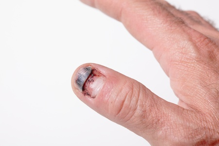 contusion: Close up photo of injury of the nail Stock Photo