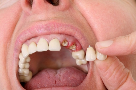 falso: Paciente mantenga diente artificial roto al lado boca abierta Foto de archivo