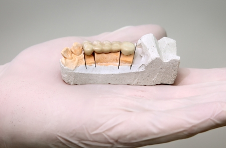 Dentist holding artificial tooth, and plaster model at open hand photo