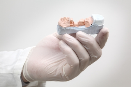 Dentist holding  plaster model of tooth in hand with gloves photo
