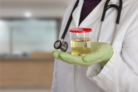 Doctor holding container with urine sample in hand Stock Photo