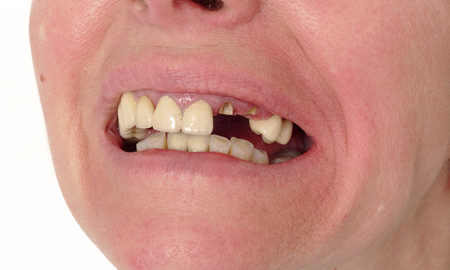 prothesis: Closeup of broken artificial tooth and inflammation, gingivitis Stock Photo