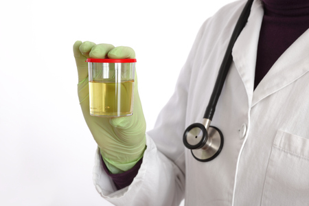 Doctor holding container with urine sample in hand, isolated on white background