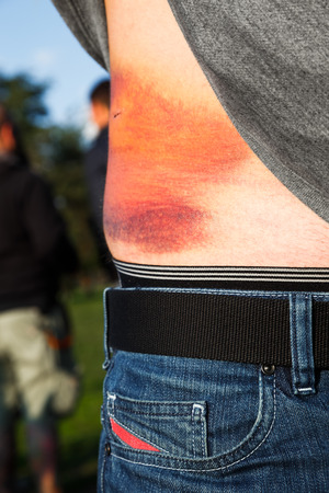contusion: Person revealing an extravasation injury on their stomach with contusions and swelling due to subcutaneous leakage of plasma from blood vessels and capillaries into the tissue Stock Photo