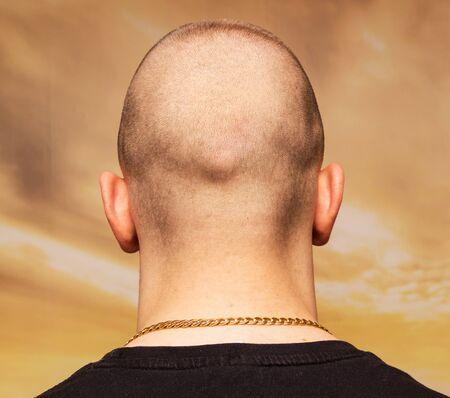 adult man bald head rear