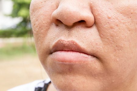 scars: Woman with oily skin and acne scars