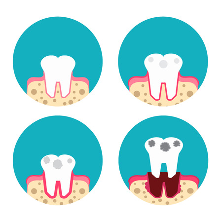 bacterial plaque: Periodontal disease icons set Illustration