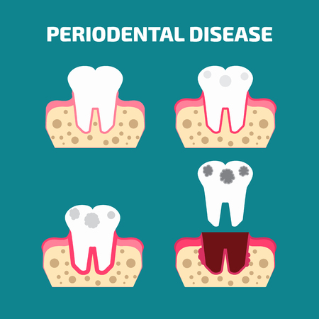 Periodontal disease icons set Illustration