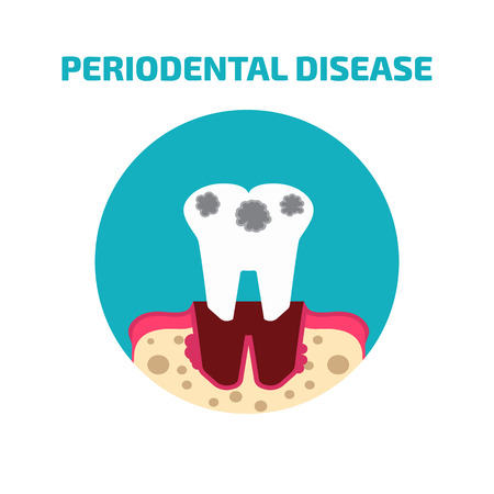bacterial plaque: Periodontal disease icon Illustration