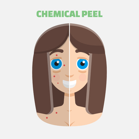 perfect face: Chemical peel