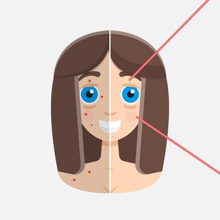 resurfacing: laser peeling before & after