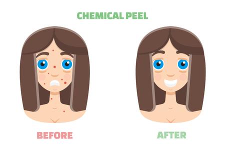 peeling chimique