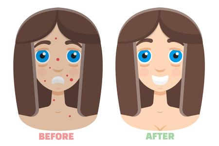 fractional: laser peeling before & after