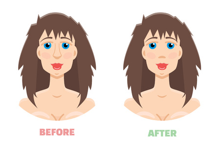 before: Plastic surgery, rhinoplasty before and after