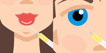 augmentation: Beauty injections, Hyaluronic Acid injections. Lip augmentation.Botox
