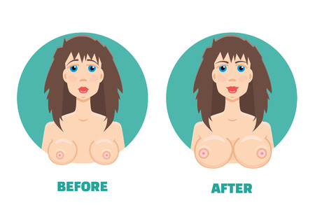 big breast: breast augmentation before and after concept