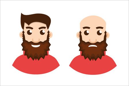 baldness: Stages Of Hair Loss, two stages Illustration