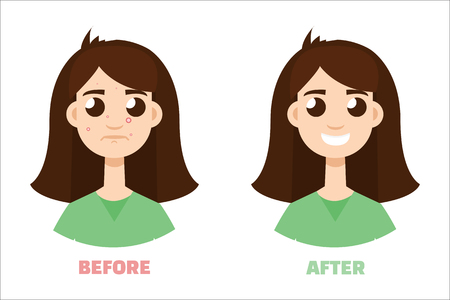 acne gir before and after. Flat style