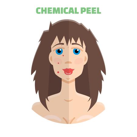 peeling: Cosmetic peeling. Chemical peeling before & after