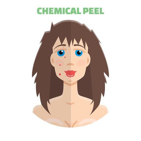 Cosmetic peeling. Chemical peeling before & after