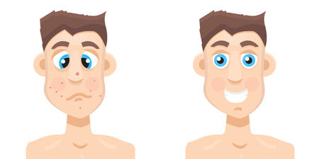 acne: acne man Illustration