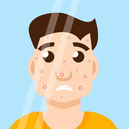 rash: acne man in mirror Illustration