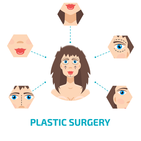 Plastic surgery infografic. Otoplasty, rhinoplasty