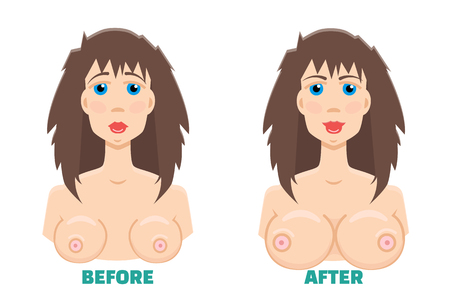 breast implant: breast augmentation before and after concept