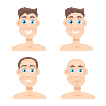shaved head: Stages Of Hair Loss new before and after Illustration