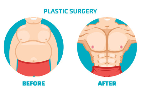 Plastic surgery man before and after