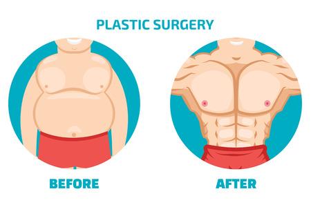 uomo chirurgia plastica prima e dopo