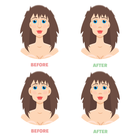 protruding: Plastic surgery, otoplasty, rhinoplasty before and after Illustration