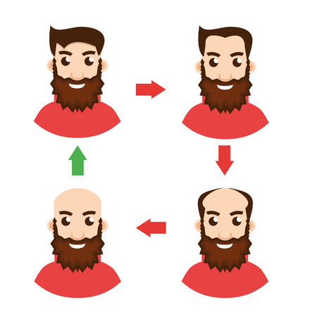 shaved head: Stages Of Hair Loss