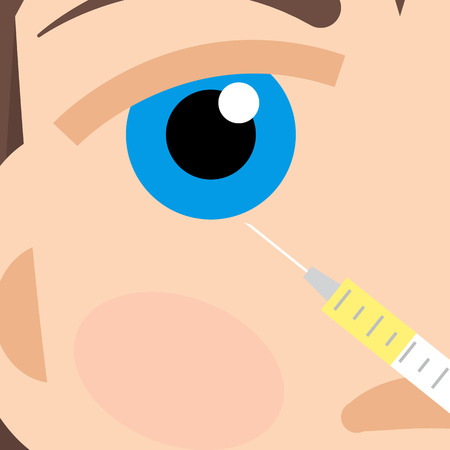 injections: Beauty injections, Hyaluronic Acid injections.