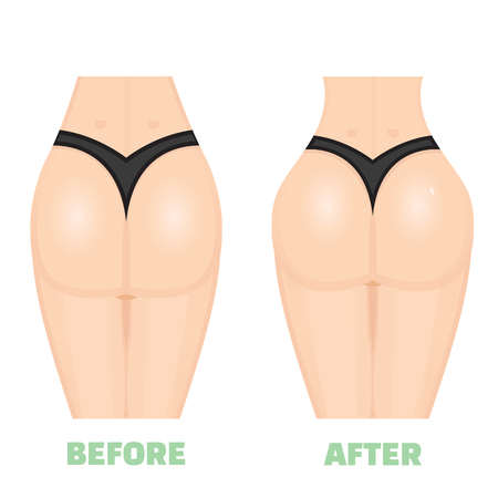 augmentation: Buttocks, breech, butt, rear, nates augmentation consept. Before an After. Increase buttocks Illustration