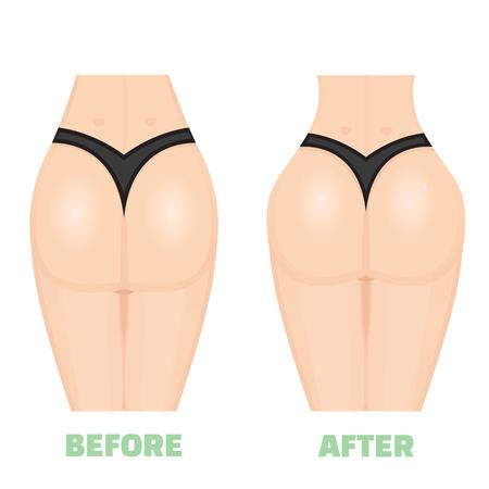 firmeza: Glúteos, nalgas, trasero, trasero, aumento nates consept. Antes de que una vez. aumentar las nalgas