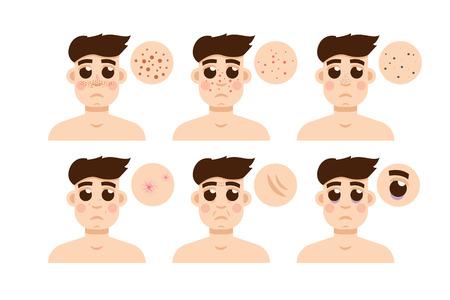 aging face: Men skin problem. Acne men. Vector illustration. Illustration