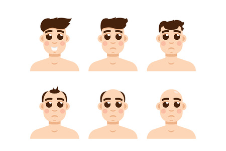 hairline: Hair stages loss. Types of baldness on male head vector.