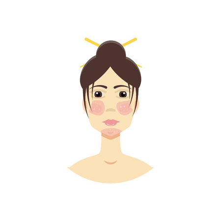 systemic: Woman with  psoriasis, symptom of SLE, rosacea . Vector illustration