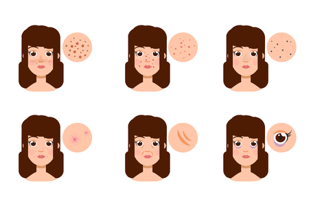 aging face: Woman with skin problem, acne. Vector illustration