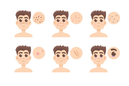 aging face: Different type of men skin problem on white background. Illustration