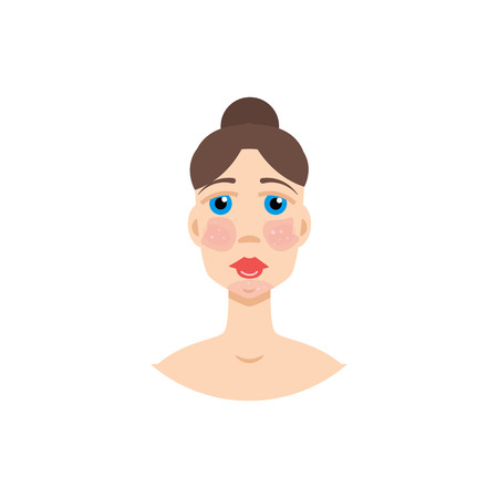 Woman with  psoriasis, symptom of SLE, rosacea . Vector illustration