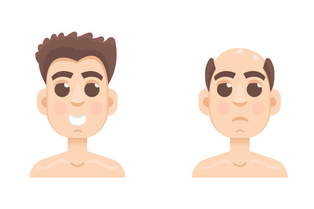 Hair stages loss. Types of baldness on male head vector.