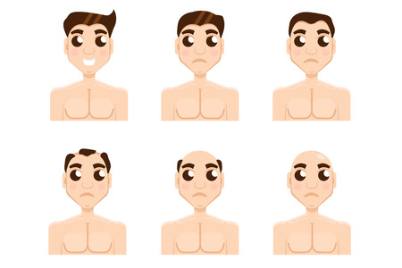 calvicie: Hair stages loss. Types of baldness on male head vector.