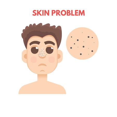 Men skin problem. Facial care. Vector illustration.