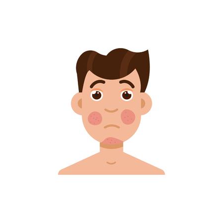 Psoriasis or rosacea men face. Vector illustration. Illustration