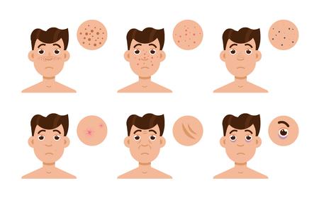 Men skin problem. Acne men. Vector illustration. Illustration