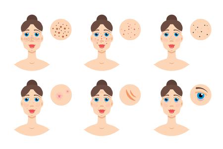 Vrouw met huidprobleem, acne. Vector illustratie Stockfoto - 87536350