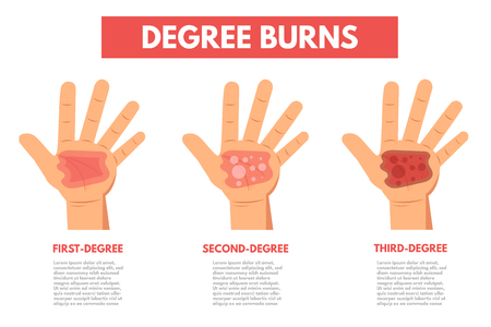 Degree burns of skin. Infographic Vector illustration.