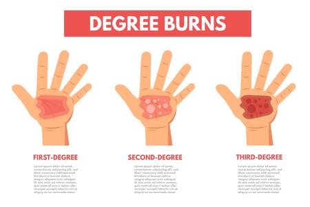Grados de quemaduras en la piel. Ilustración de vector de infografía.
